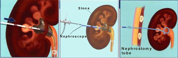 rozbijanie kamieni nerkowych